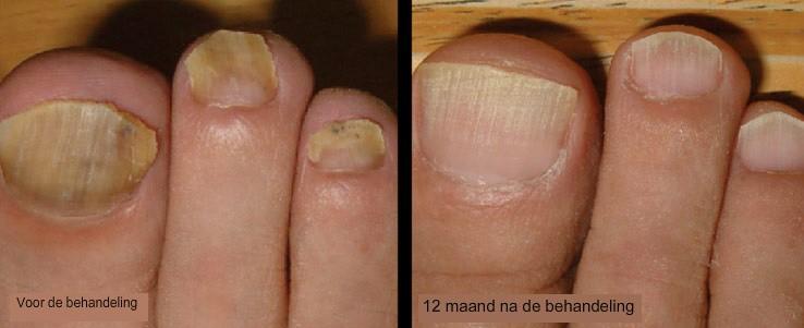 nagel schimmel